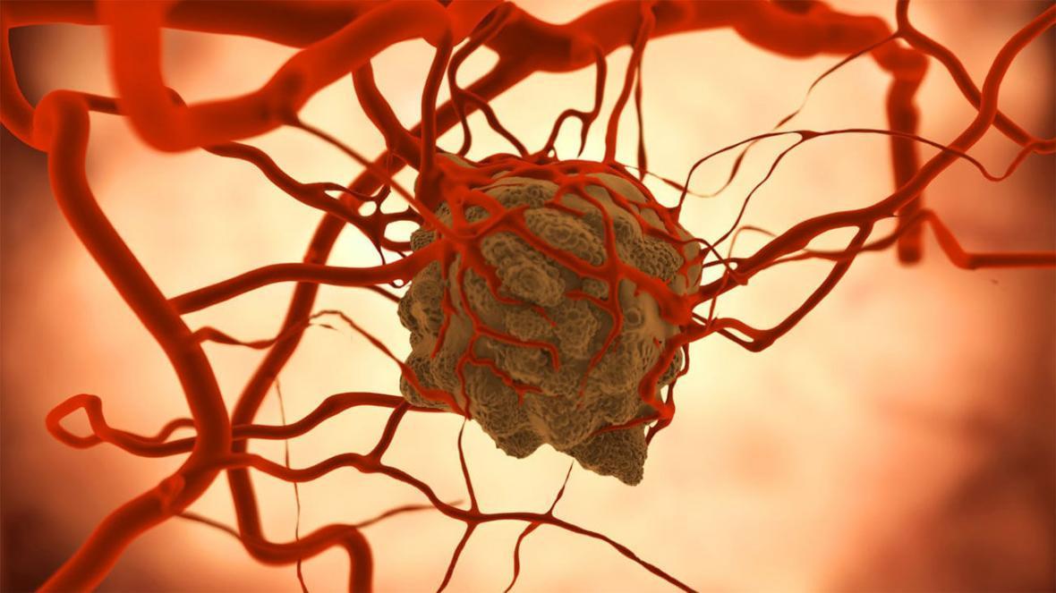 تراشه ای میکروسیال برای درمان سرطان